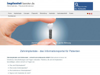 implantat-berater.de