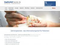 implantat-berater.de