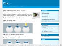 Augenlaser Verfahren im Vergleich - Lasik und Lasek Methode