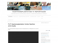 haartransplantation-tv-reportage.at