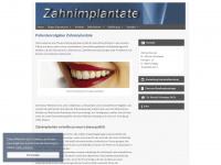 zahn-implant.de