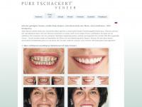 pure-tschackert-veneer.com