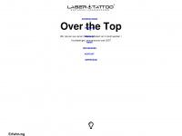 Laser-tattoo.info